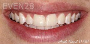 Anjali-Rajpal-Dental-Bonding-after-4