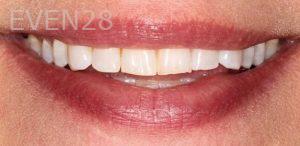 Anjali-Rajpal-Dental-Bonding-before-1