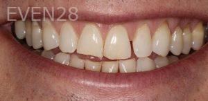 Anjali-Rajpal-Dental-Bonding-before-2