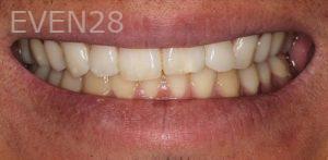 Anjali-Rajpal-Dental-Bonding-before-3