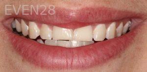 Anjali-Rajpal-Dental-Bonding-before-4
