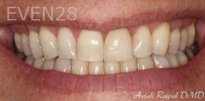 Anjali-Rajpal-Dental-Crowns-after-1