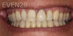 Anjali-Rajpal-Dental-Crowns-before-1