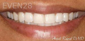 Anjali-Rajpal-Invisalign-Clear-Aligners-after-2