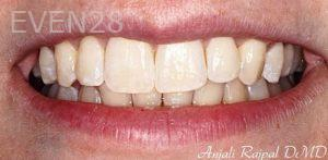 Anjali-Rajpal-Invisalign-Clear-Aligners-after-5