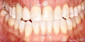 Anjali-Rajpal-Invisalign-Clear-Aligners-after-6