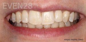 Anjali-Rajpal-Invisalign-Clear-Aligners-after-7