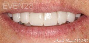 Anjali-Rajpal-Smile-Makeover-after-1