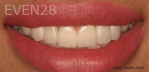 Anjali-Rajpal-Smile-Makeover-after-2
