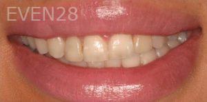 Anjali-Rajpal-Smile-Makeover-before-2