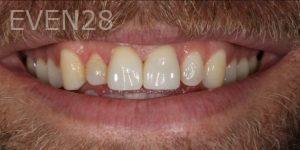 Fabian-Taghdiri-Dental-Crowns-after-1