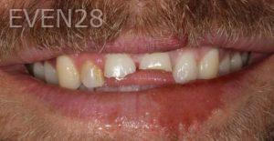 Fabian-Taghdiri-Dental-Crowns-before-1