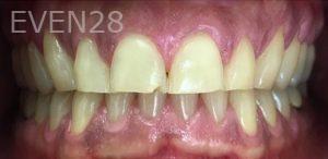 Fabian-Taghdiri-Smile-Makeover-before-2