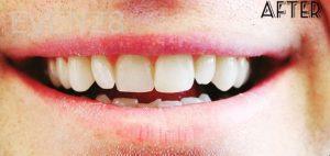 Faraz-Farahnik-Dental-Bonding-after-1