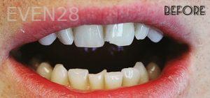 Faraz-Farahnik-Dental-Bonding-before-1