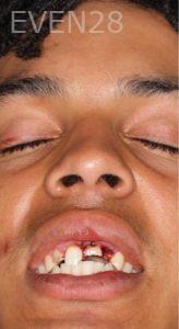 Faraz-Farahnik-Dental-Crowns-before-1