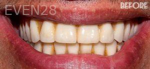 Faraz-Farahnik-Dentures-before-1