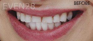 Faraz-Farahnik-Porcelain-Veneers-before-3