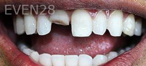 Faraz-Farahnik-Smile-Makeover-before-2