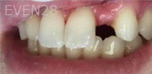 Faraz-Farahnik-Smile-Makeover-before-3