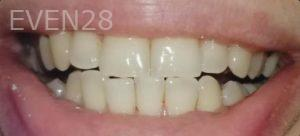 Faraz-Farahnik-Teeth-Whitening-after-1