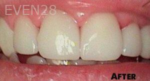 Heather-Winther-Dental-Crowns-after-1
