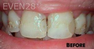 Heather-Winther-Dental-Crowns-before-1