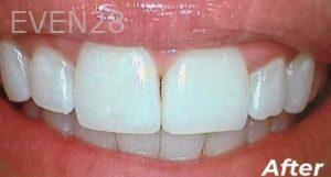 Heather-Winther-Invisalign-Clear-Aligners-after-1