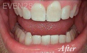 Heather-Winther-Invisalign-Clear-Aligners-after-2