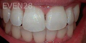 Heather-Winther-Invisalign-Clear-Aligners-after-3