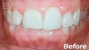 Heather-Winther-Invisalign-Clear-Aligners-before-1