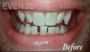 Heather-Winther-Invisalign-Clear-Aligners-before-2