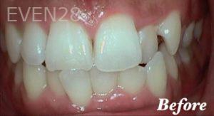 Heather-Winther-Invisalign-Clear-Aligners-before-3