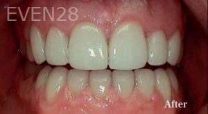 Heather-Winther-Porcelain-Veneers-after-1