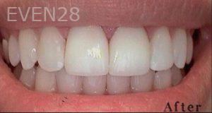 Heather-Winther-Porcelain-Veneers-after-2