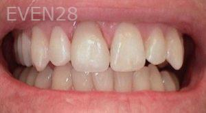 Heather-Winther-Porcelain-Veneers-after-3
