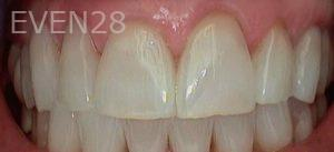 Heather-Winther-White-Fillings-after-1