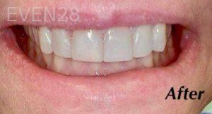 Heather-Winther-White-Fillings-after-2