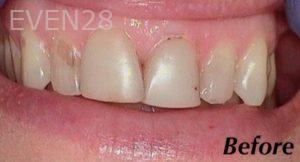 Heather-Winther-White-Fillings-before-2