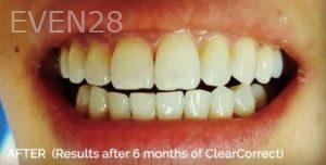 Jae-Lee-ClearCorrect-Clear-Aligners-after-1