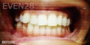 Jae-Lee-ClearCorrect-Clear-Aligners-before-1
