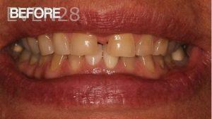 Joseph-Goodman-Full-Mouth-Reconstruction-before-1