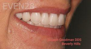 Joseph-Goodman-Porcelain-Veneers-after-2