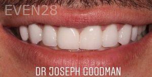 Joseph-Goodman-Porcelain-Veneers-after-5