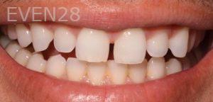 Joseph-Goodman-Porcelain-Veneers-before-5