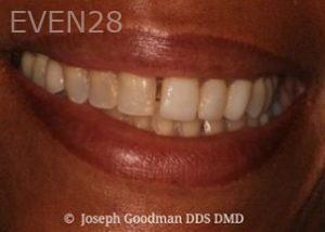 Joseph-Goodman-Porcelain-Veneers-before-7