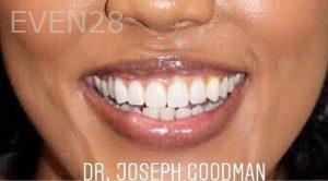 Joseph-Goodman-Smile-Makeover-after-1