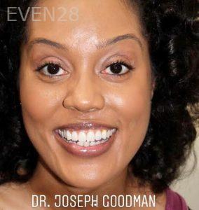 Joseph-Goodman-Smile-Makeover-after-1b