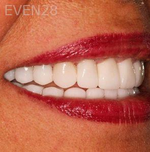 Joseph-Goodman-Smile-Makeover-after-2
