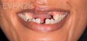 Joseph-Goodman-Smile-Makeover-before-1